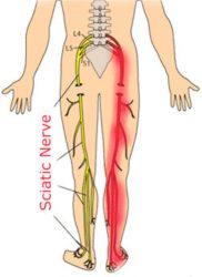 durerea nervului sciatic