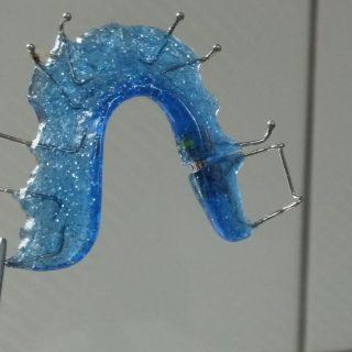 cele mai comune aparate dentare